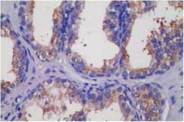 免疫组化(IHC)技术